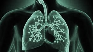 wood dust in lung Xray