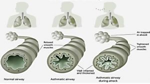 occupational-asthma-results-from-woodwork