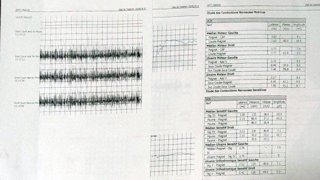 2014 electromyogram 2019 CTS test result