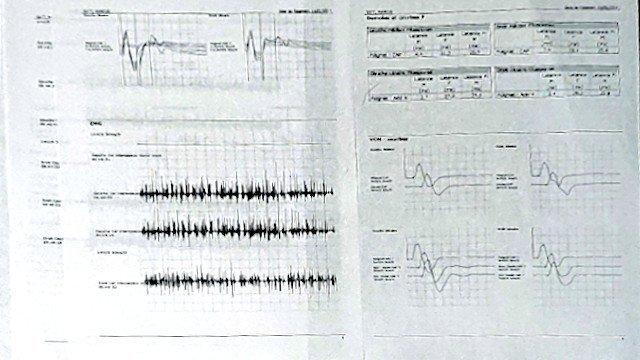 2014 electromyogram CTS test result