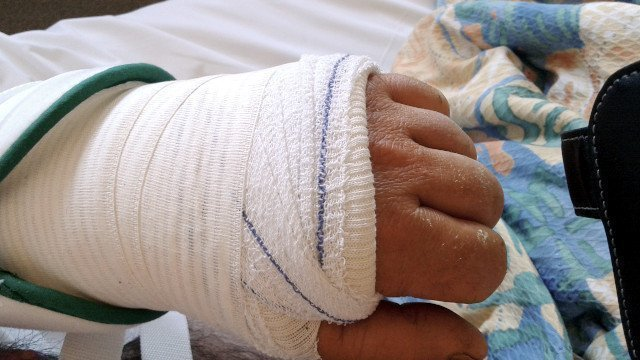 Carpal tunnel surgery bandages
