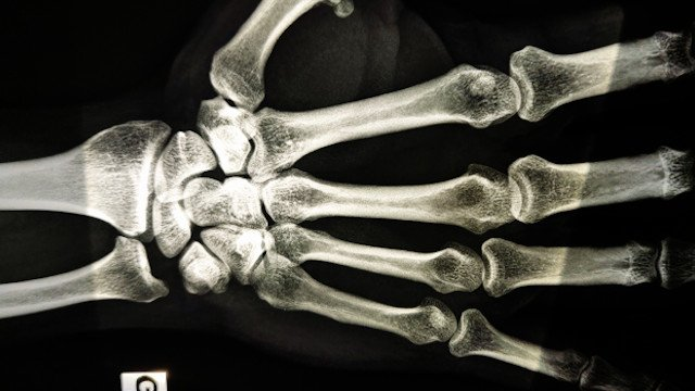 hand xray for carpal tunnel test