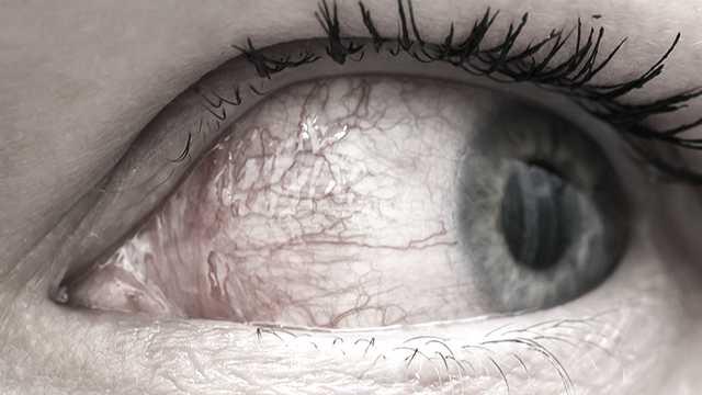 dry eye open